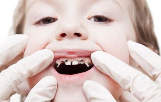 How To Cure Kids Rotten Teeth
