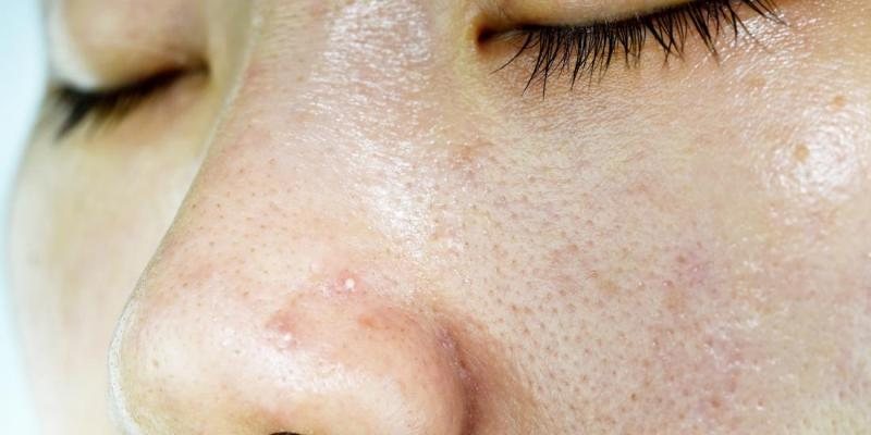 How to Treat Clogged Pores and Acne