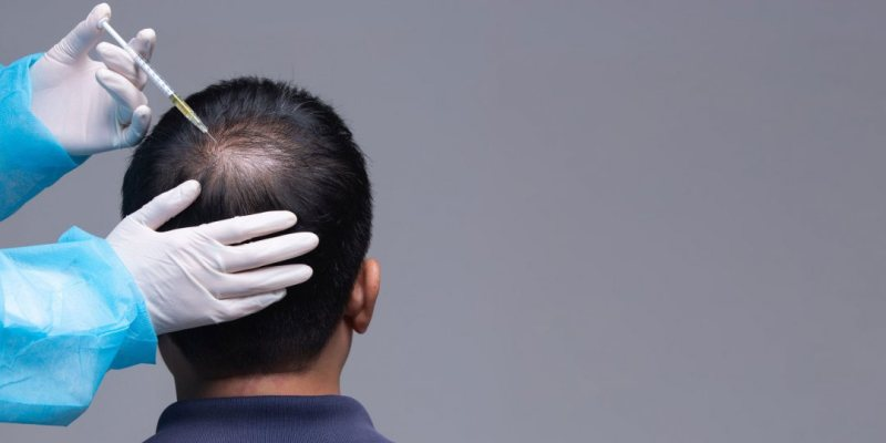 Nutrition recommended to prevent and combat baldness