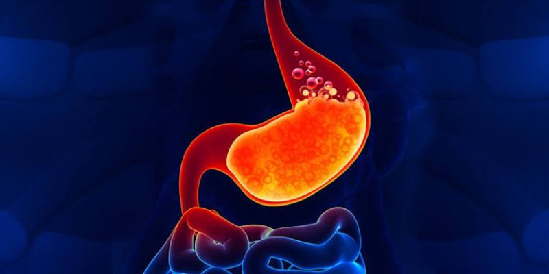 What Are the Symptoms of Acid Reflux Disease?